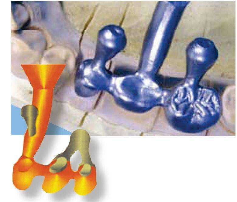 Литниковая система | ортопедическая стоматология